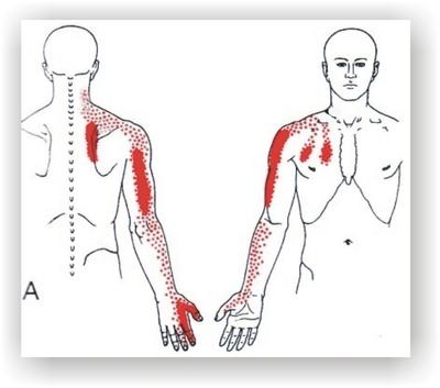 Directrices para no seguir sobre Crema para dolor de espalda
